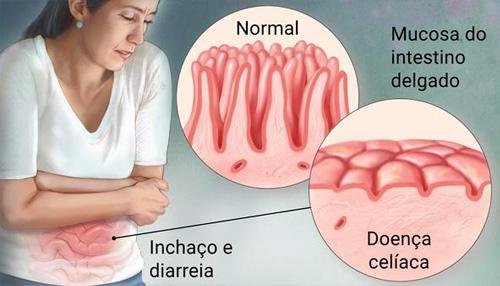 Intolerância ao Glúten x Doença Celíaca